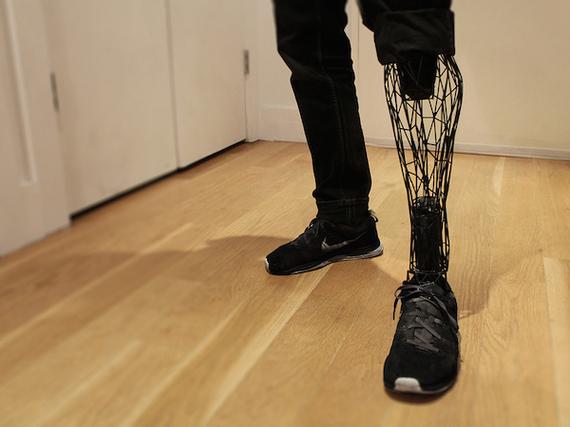 2015-12-18-1450470786-7291718-exo_prosthetic_WilliamRoot.jpg