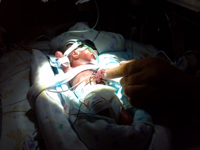 premature baby in incubator micropreemie