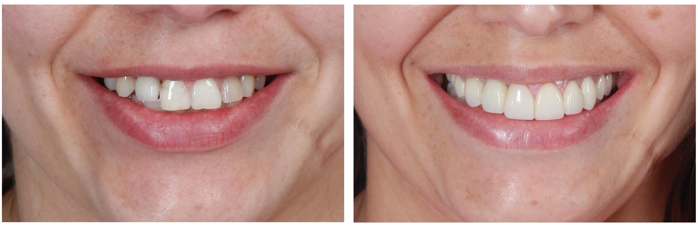 Blog - Página 5 de 20 - Reabilitação Oral e Ortodontia 3469f18fc9