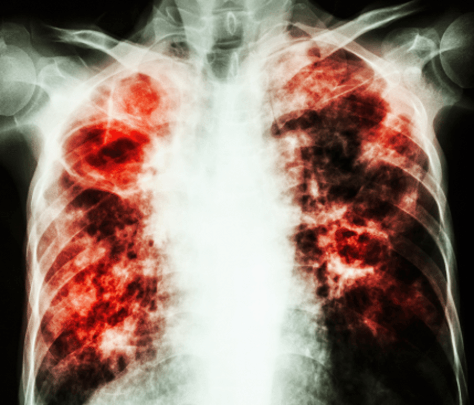 tuberculosis immune system and national tb Tuberculosis (tb) is an infectious  when the bacilli overcome the immune system defenses and begin to multiply  revised national tuberculosis .