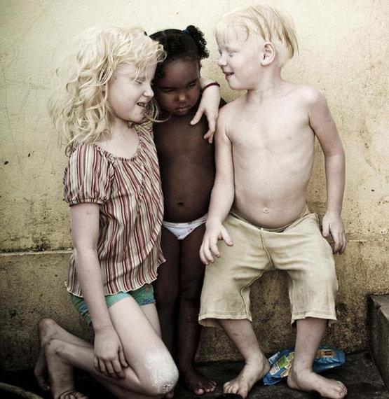2016-05-05-1462483767-4367980-albinochildren.jpg