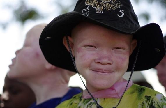 2016-05-05-1462484053-2355308-albinochild.jpg