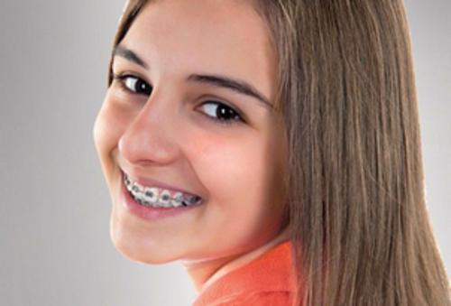 2016-05-26-1464251460-3041639-braces.png