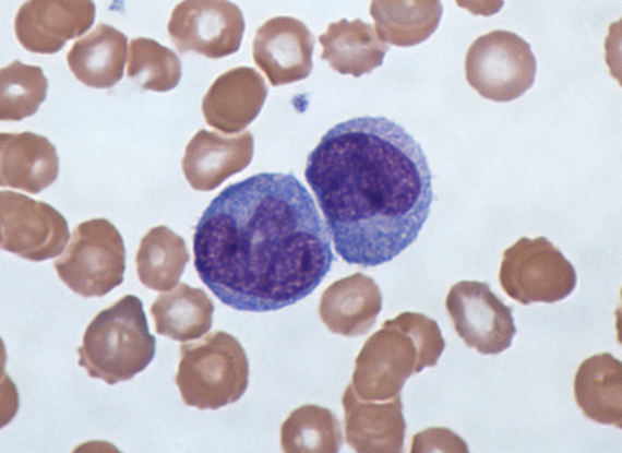 2016-05-29-1464506297-5064242-Monocytes_a_type_of_white_blood_cell_Giemsa_stained.jpg