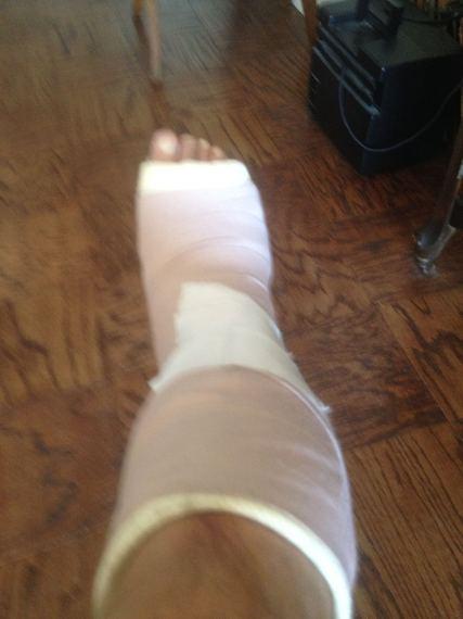 2016-06-06-1465225098-2416997-crutch.jpg