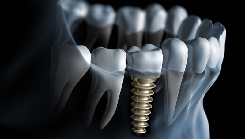 Oral implantology implant dentistry
