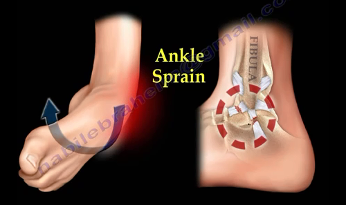 2016-08-24-1472069616-3806197-ankle5.PNG
