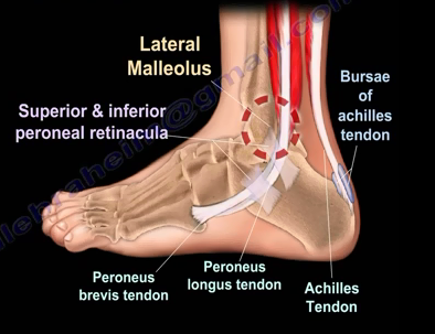 2016-08-24-1472069646-1858430-ankle6.PNG