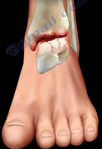 2016-08-24-1472069759-8900477-ankle12.PNG