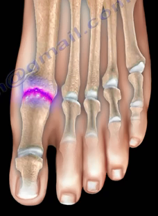 Foot Joint Anatomy Gout