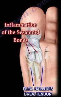 Big Toe Pain: Bunions,...