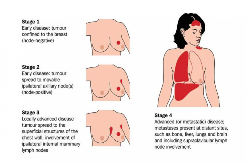 breast cancer diagnosis procedure