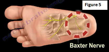 Common Causes of Heel Pain: Baxter Nerve Compression, Plantar
