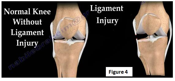 lowering uric acid levels best fruit for uric acid patient gout pain under big toe