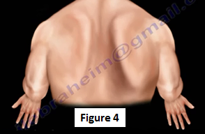 The resistance of forward flexion is when the patient will resist the