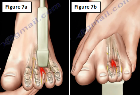 Neuroma on bottom of foot
