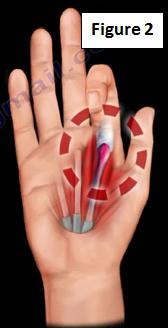 trigger thumb - WebMD