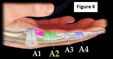 2016-11-15-1479218959-5973422-finger4.PNG
