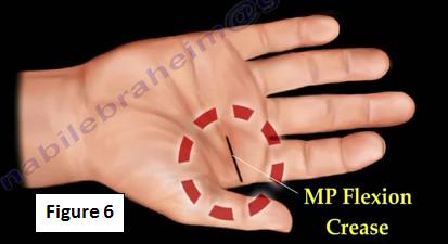 trigger finger surgery: Osteoarthritis Community - WebMD