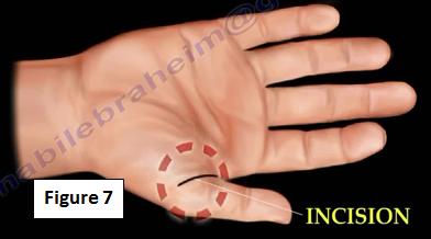 2016-11-15-1479219066-5948652-finger7.PNG