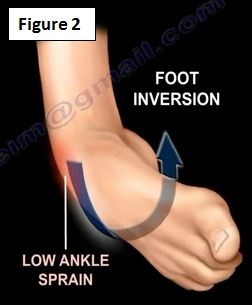 2016-12-20-1482261045-7109779-ankleinstability2.PNG