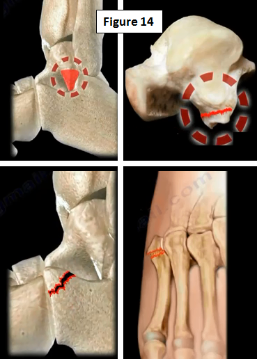 2016-12-20-1482261316-536038-ankleinstability14.PNG