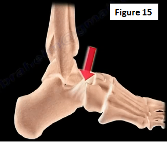 2016-12-20-1482261337-7254305-ankleinstability15.PNG