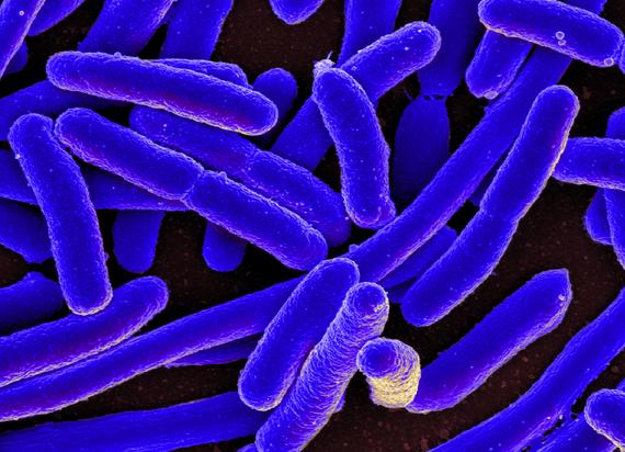 2016-12-22-1482401777-432545-E._coli_Bacteria_16578744517.jpg