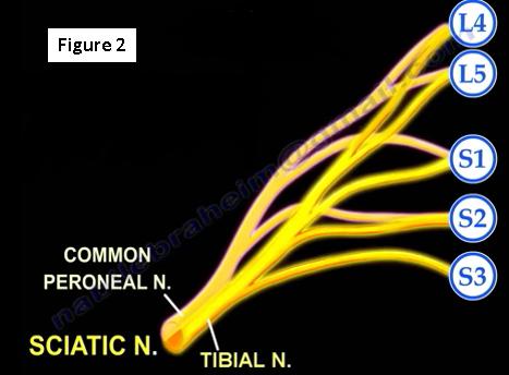 2017-01-09-1483979252-7266693-sciatica2.PNG