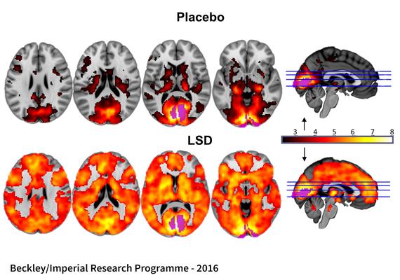2017-01-13-1484309566-442066-BrainscansshowingtheeffectofLSDonpeoplesbrains_publishedinPNAS2016.jpg