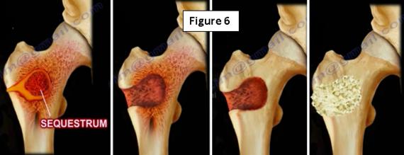 2017-01-26-1485452776-8877801-osteomyelitis6.PNG