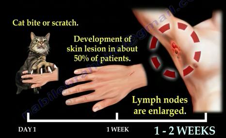 Azithromycin dosage cat scratch disease images