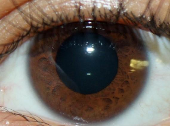2018-01-03-1515003818-5690946-Picture_of_brown_eyes.jpg