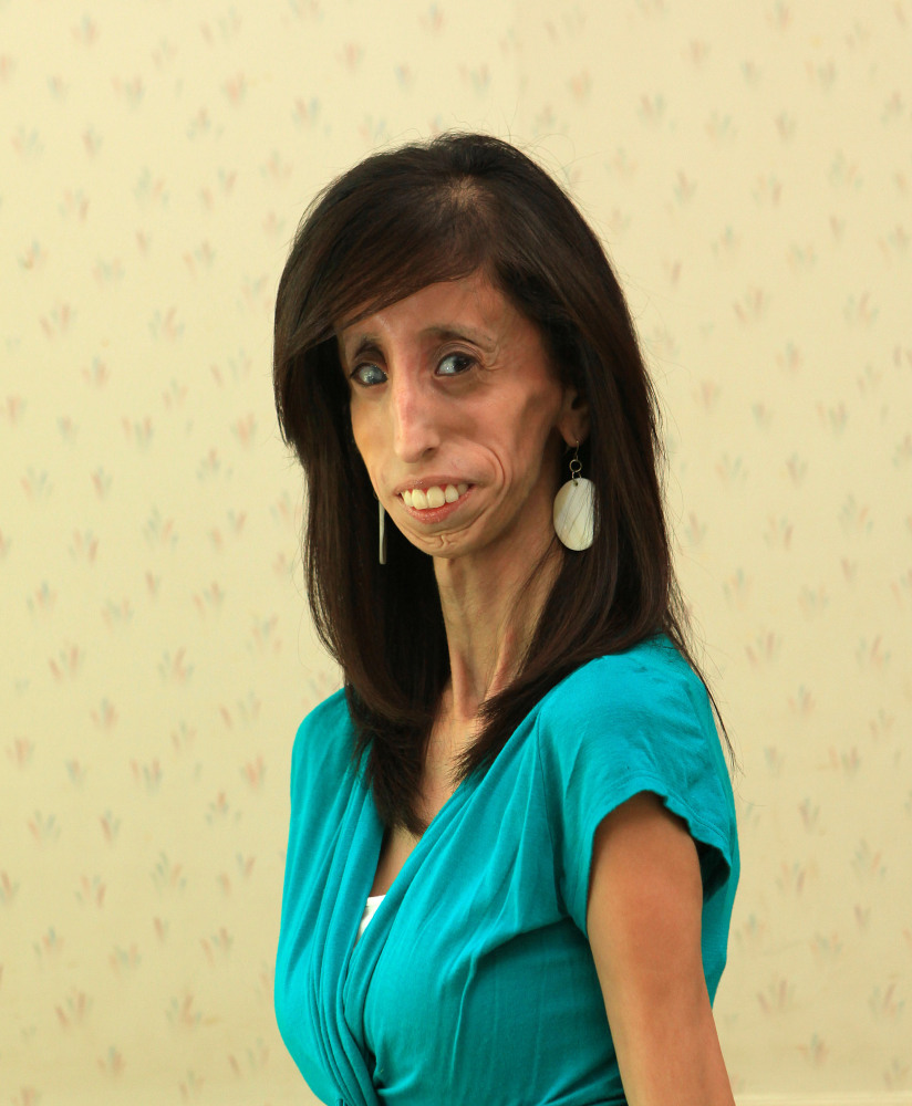worlds ugliest girl - YouTube  |The Most Ugly Girl In The World Pics