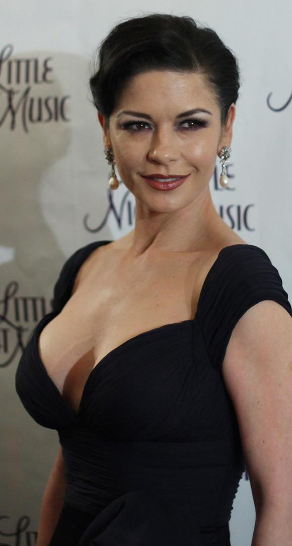 What is this mark on Catherine Zeta Jones's breast?