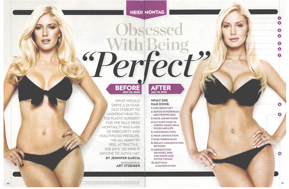 Heidi Montag's 10 Plastic Surgery Procedures: Before & After PHOTOS