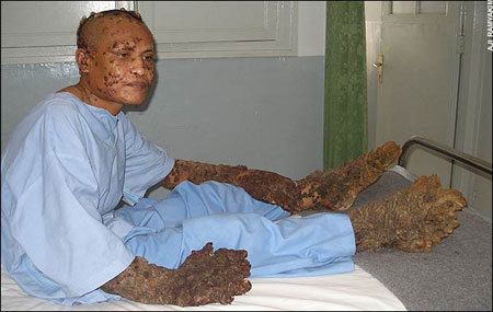 Tree man has surgery wants love the huffington post