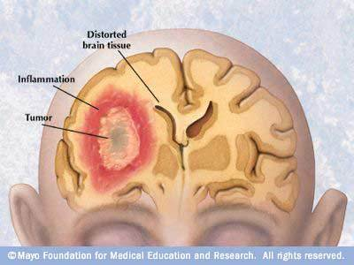 brain tumors whos had them what the symptoms are and