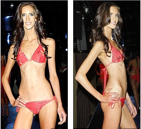 beautiful anorexic model too skinny